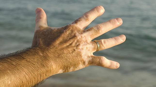 La mutación mediterránea que nos predispone al cáncer de piel