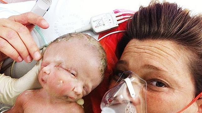 Nacen en Australia dos mellizas con un mismo cuerpo y dos rostros en un solo cráneo