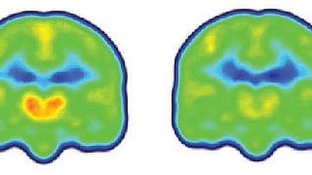 Visualización del dolor; a la izda un cerebro de una persona con dolor crónico donde se ve la activación de la proteína (naranja y rojo), y a la dcha el de una persona sana