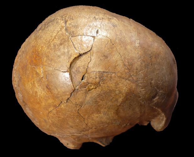 Vista lateral derecha de la Cioclovina calvaria que muestra una gran fractura deprimida