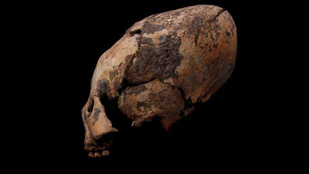 Un niño de hace 6.000 años con el cráneo alargado encontrado en China