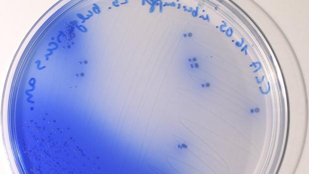 Lactobacillus bulgaricus