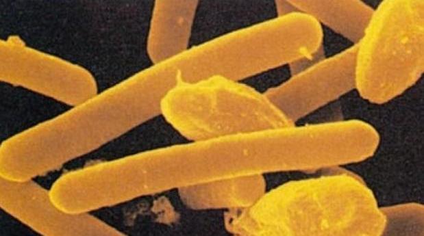 Imagen de la toxina que provoca botulismo