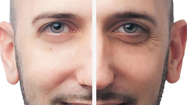 Un paciente tras someterse a un tratamiento con ácido hialurónico para rellenar las ojeras