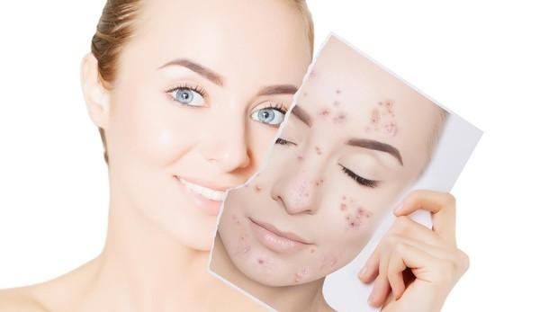 Sevilla acne tratamiento cicatrices