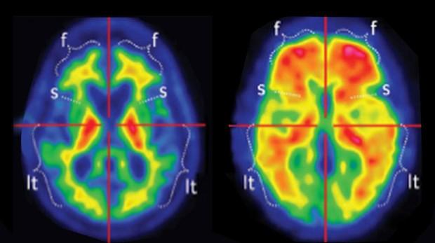 Izda_placa beta amiloide en paciente san; dcha, aciente con Alzheimer