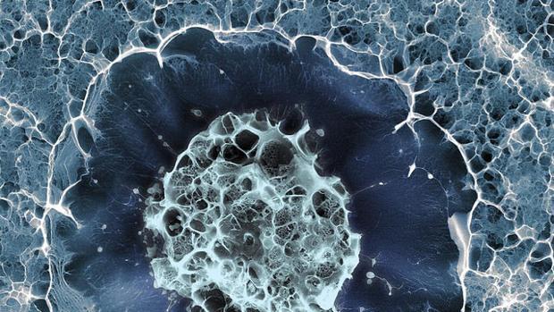 Células madre y terapias genéticas para la diabetes mellitus.