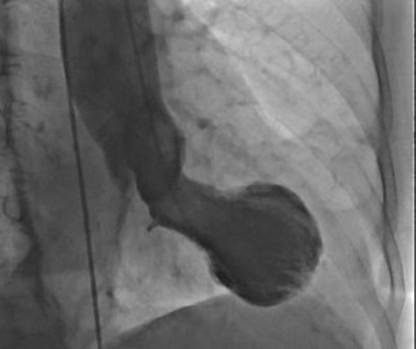 Este es un corazón de Takotsubo, que muestra la forma típica que se asemeja a una trampa de pulpo japonesa.