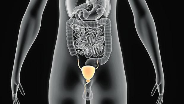 cáncer de prróstata