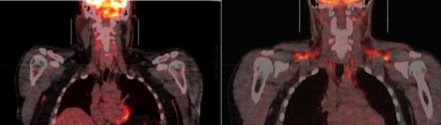 En la imagen de la izquierda, la grasa marrón no está activada. A la derecha: las condiciones de frío activan la grasa marrón, como lo muestra el color naranja en ambos hombros y el cuello.
