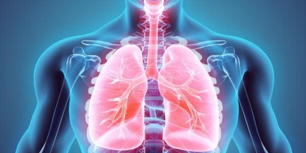 Un ensayo español evaluará la eficacia de un nuevo tratamiento para el cáncer de pulmón avanzado