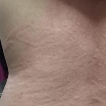 Coronavirus: Estas son las cinco manifestaciones del Covid-19 en la piel