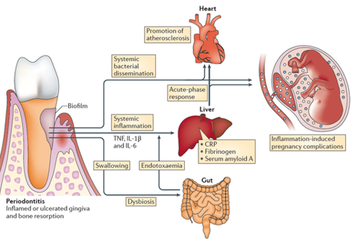 Periodontitis and systemic diseases.  This figure summarizes how, in periodontitis, dental plaque bacteria (biofilm), its enzymes and other bacterial products, and proinflammatory molecules produced by human cells in the gums, can reach other parts of the body and cause complications.