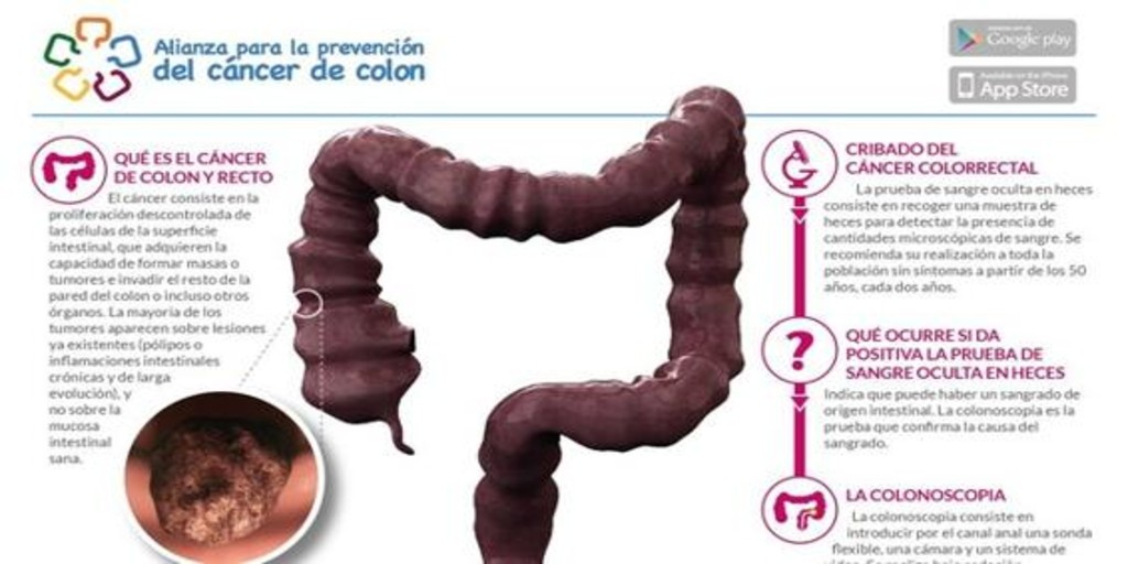 cancer colon heces ce medicament ucide paraziții din organism