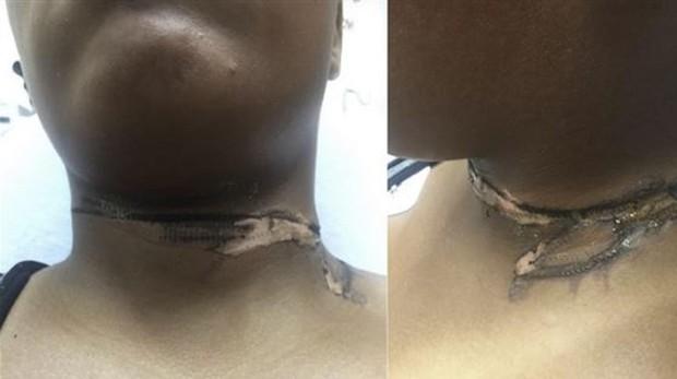 Imagen de la quemadura parcial de segundo grado en la joven de 19 años en Michigan, Estados Unidos